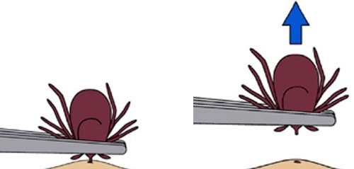 A graphic from the CDC showing how to remove a tick with tweezers